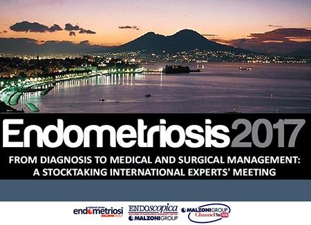 Endometriosis 2017