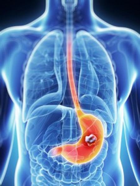 carcinoma gastrico