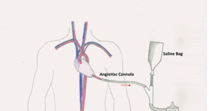 Tecnica AngioVac