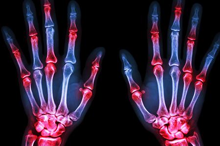 Artrite rematoide